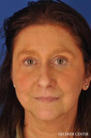 Brow Lift: Patient 4 - After Image