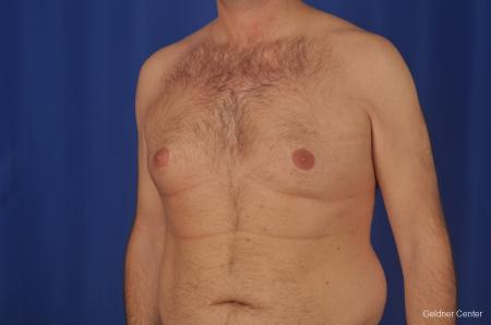 Gynecomastia: Patient 1 - Before and After Image 4