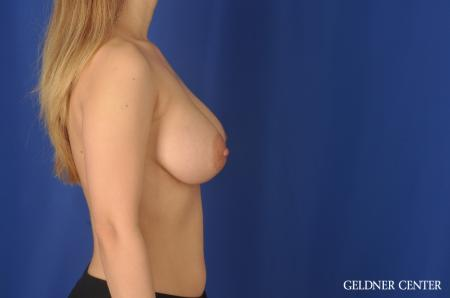 Breast Augmentation Lake Shore Dr, Chicago 11849 -  After Image 2