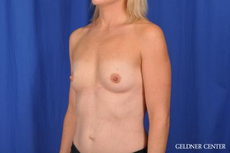Breast Augmentation: Patient 186 - Before and After Image 4