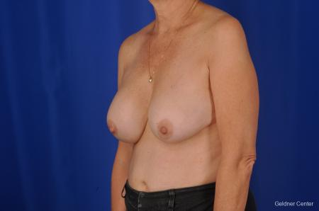 Breast Augmentation Lake Shore Dr, Chicago 2057 - Before and After Image 4