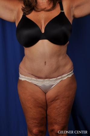 Lipoabdominoplasty: Patient 4 - After Image