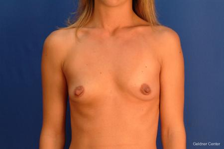 Breast Augmentation Hinsdale, Chicago 2510 - Before Image 1