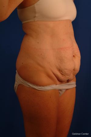 Liposuction: Patient 11 - Before Image 2