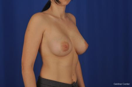 Chicago Complex Breast Augmentation 2306 -  After Image 2