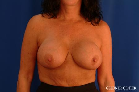 Chicago Breast Lift 2617 - Before Image 1