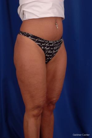 Liposuction: Patient 7 - After Image 2