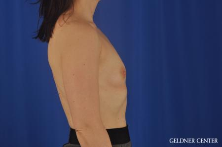 Chicago Breast Augmentation 8760 - Before Image 2