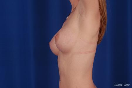 Chicago Breast Augmentation 2634 -  After Image 5
