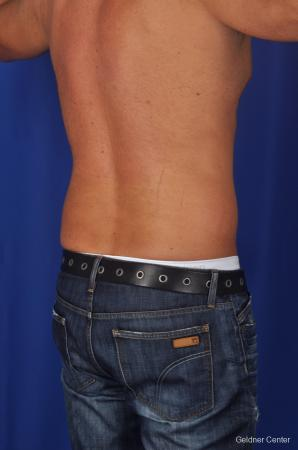 Liposuction For Men: Patient 1 - Before Image 3