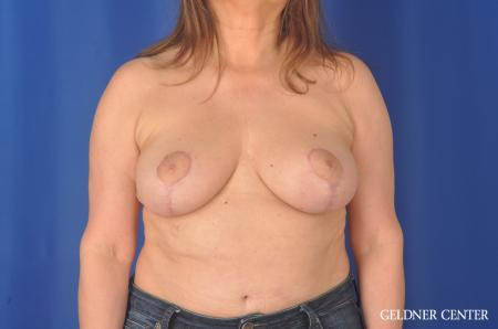 Breast Lift Hinsdale, Chicago 11863 -  After Image 1
