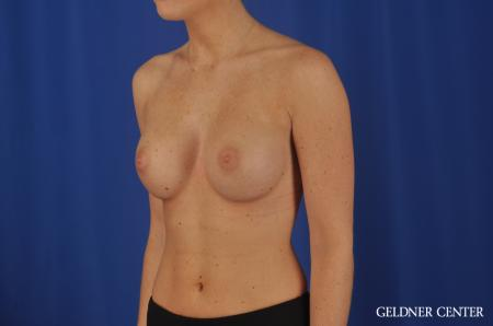 Chicago Breast Augmentation 4292 -  After 4