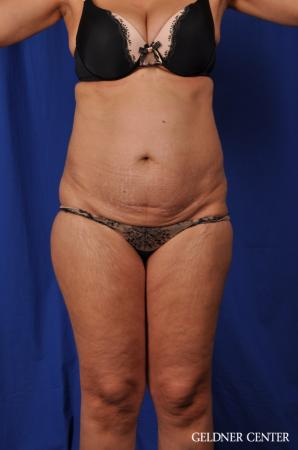 Lipoabdominoplasty: Patient 5 - Before Image