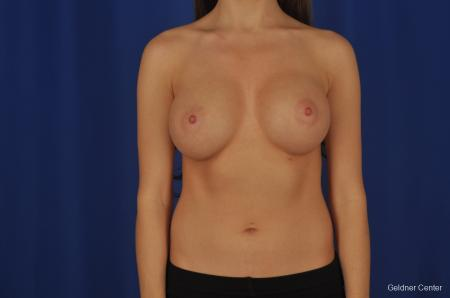 Breast Augmentation Hinsdale, Chicago 2373 -  After Image 1