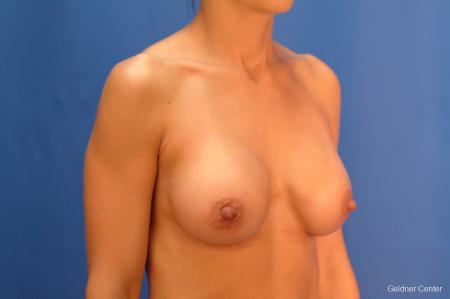 Chicago Breast Augmentation 2521 -  After Image 3