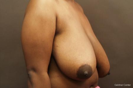 Chicago Breast Reduction 2441 - Before Image 3