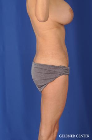 Liposuction: Patient 37 - After Image 3