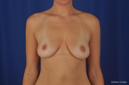 Chicago Breast Augmentation 2374 - Before Image 1