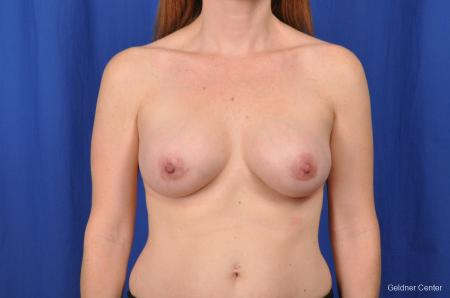 Breast Augmentation Hinsdale, Chicago 2531 -  After Image 1