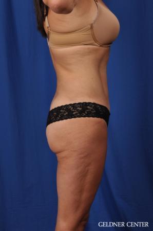 Liposuction: Patient 43 - After 3