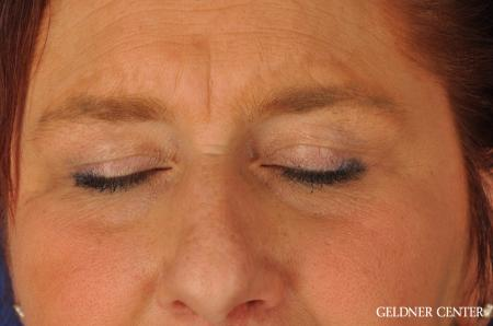 Brow Lift: Patient 4 - Before and After Image 5