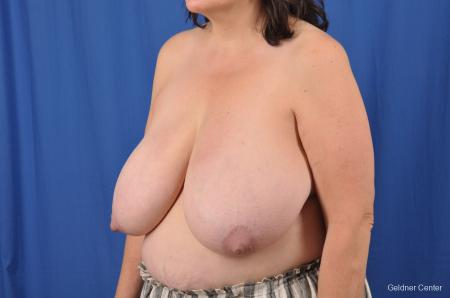 Breast Reduction: Patient 29 - Before and After Image 4