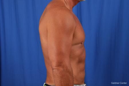 Gynecomastia: Patient 7 - After Image 2