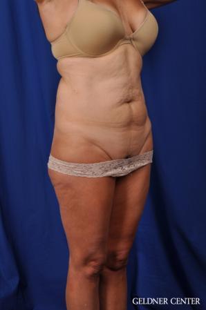 Liposuction: Patient 43 - Before 2