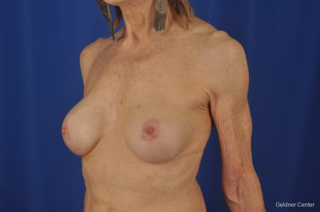 Breast Augmentation Hinsdale, Chicago 2055 -  After Image 4