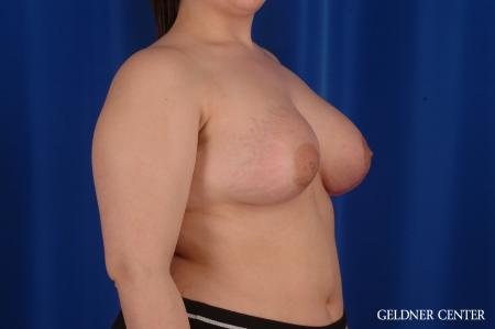 Chicago Complex Breast Augmentation 2616 -  After Image 3