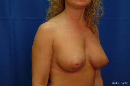 Breast Augmentation Lake Shore Dr, Chicago 2436 -  After Image 3