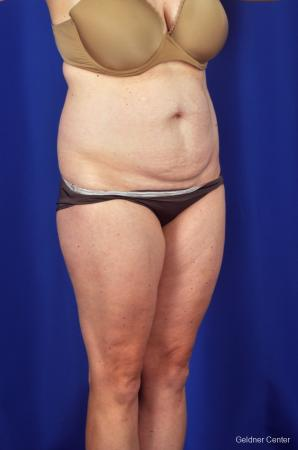Liposuction: Patient 6 - Before Image 2