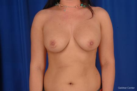Breast Augmentation Lake Shore Dr, Chicago 2283 - Before Image 1
