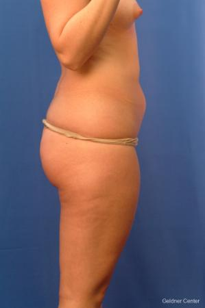 Liposuction: Patient 13 - Before Image 3