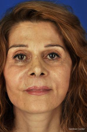 Facelift: Patient 4 - After Image 1