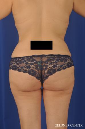 Liposuction: Patient 31 - After Image 4