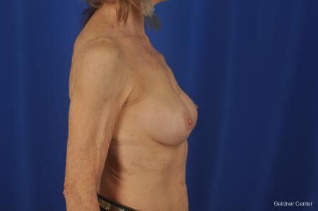 Breast Augmentation Hinsdale, Chicago 2055 -  After Image 2
