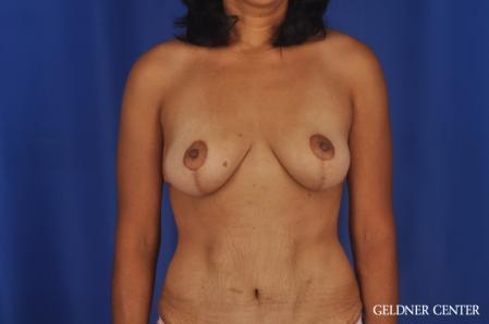Breast Lift: Patient 49 - After Image 1