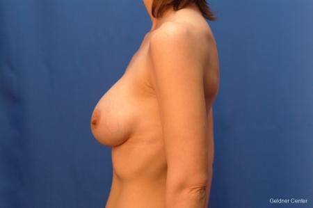 Chicago Complex Breast Augmentation 2415 -  After Image 3