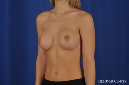 Breast Augmentation Streeterville, Chicago 4294 -  After Image 4