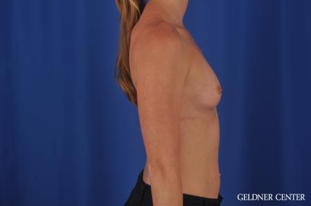 Breast Augmentation Lake Shore Dr, Chicago 6658 - Before Image 3
