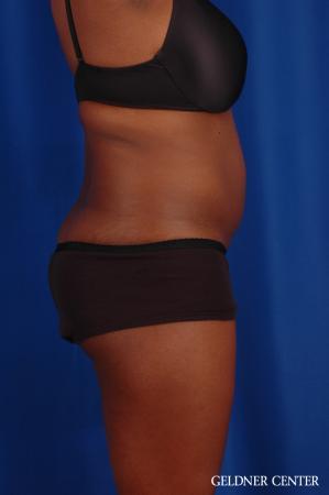 Liposuction: Patient 42 - Before Image 3