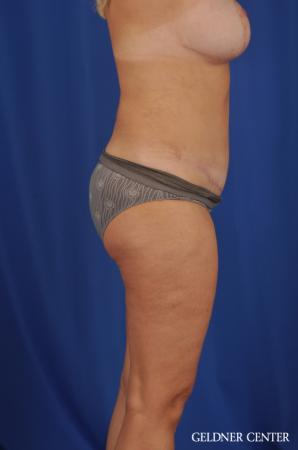 Lipoabdominoplasty: Patient 6 - After Image 3
