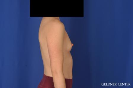 Breast Augmentation: Patient 187 - Before Image 3