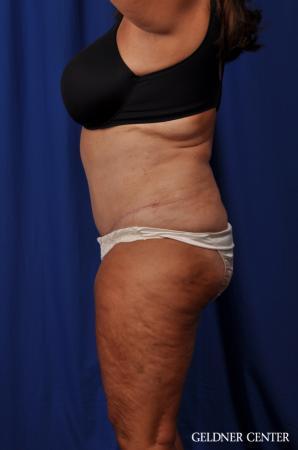 Lipoabdominoplasty: Patient 4 - After Image 5