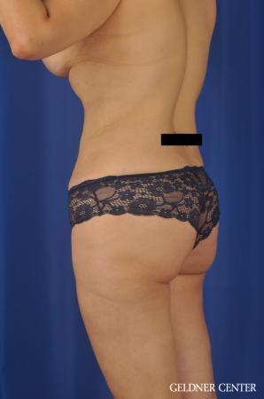 Lipoabdominoplasty: Patient 7 - After Image 5