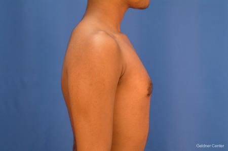 Gynecomastia: Patient 5 - After Image 2