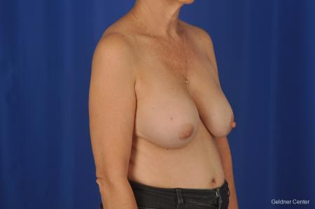 Breast Lift Hinsdale, Chicago 2058 - Before Image 3