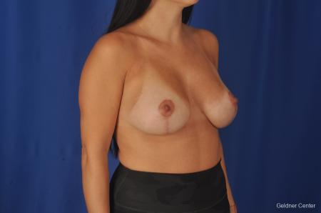 Breast Augmentation: Patient 78 - After Image 3