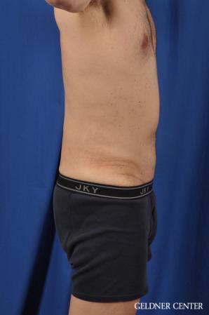 Abdominoplasty For Men: Patient 2 - After Image 3